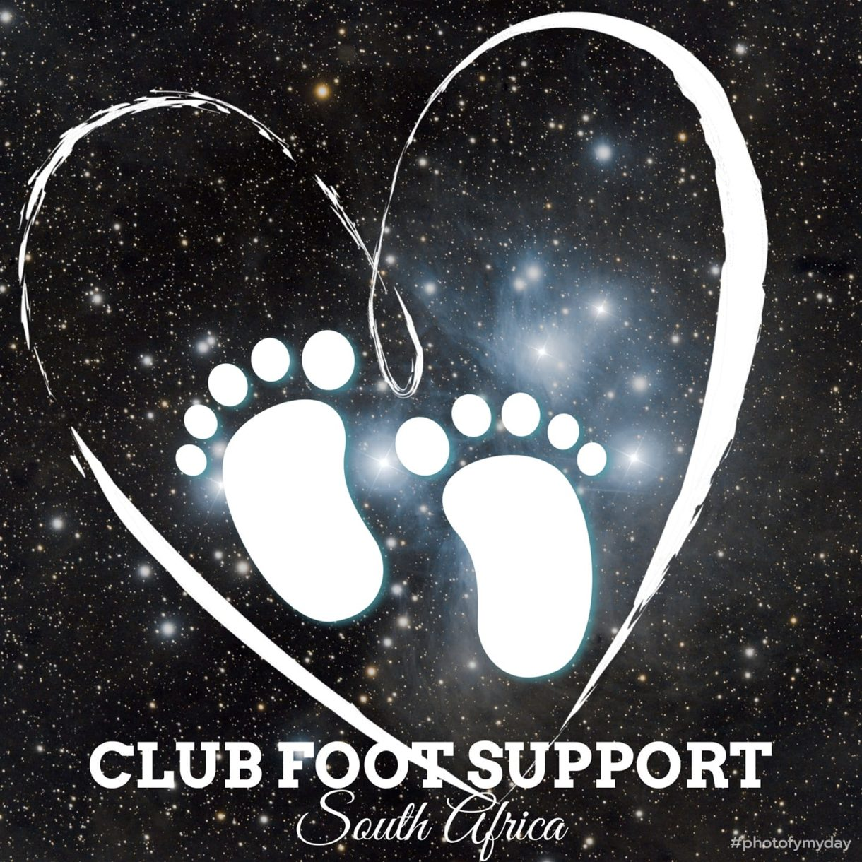 Club Foot Support South Africa
